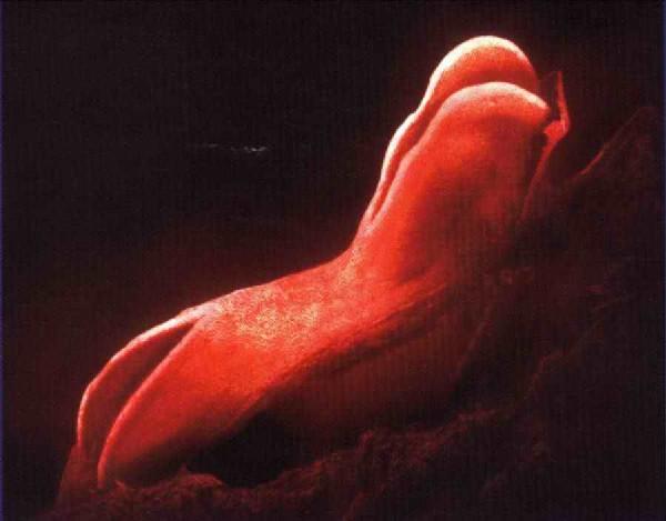 Тромбофлебиты нижних конечностей реферат