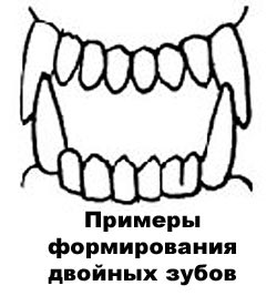 Лунки зубов на нижней челюсти