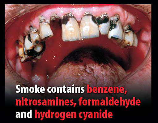 cigarette smoking and its social movement Cigarette smoke and secondhand smoke  cigarette smoking also causes severe damage to the heart and the thus smoking may serve as a social barrier.