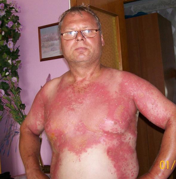 Чем лечить ожоги от борщевика в домашних условиях 110