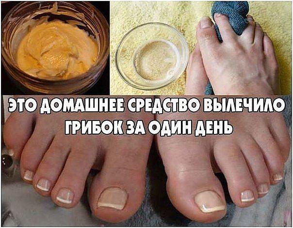 Грибок на ногтях как лечить народные средства