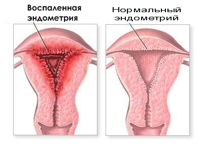Ыкак сделать вагину самому фото 622-63