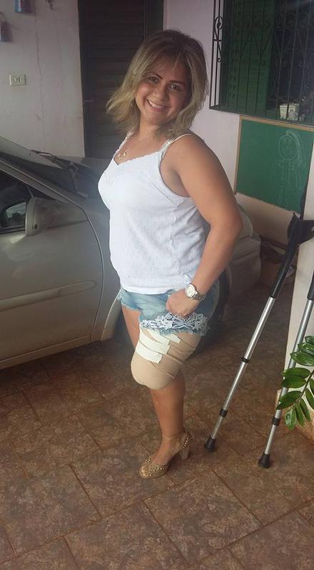 bandaged stump