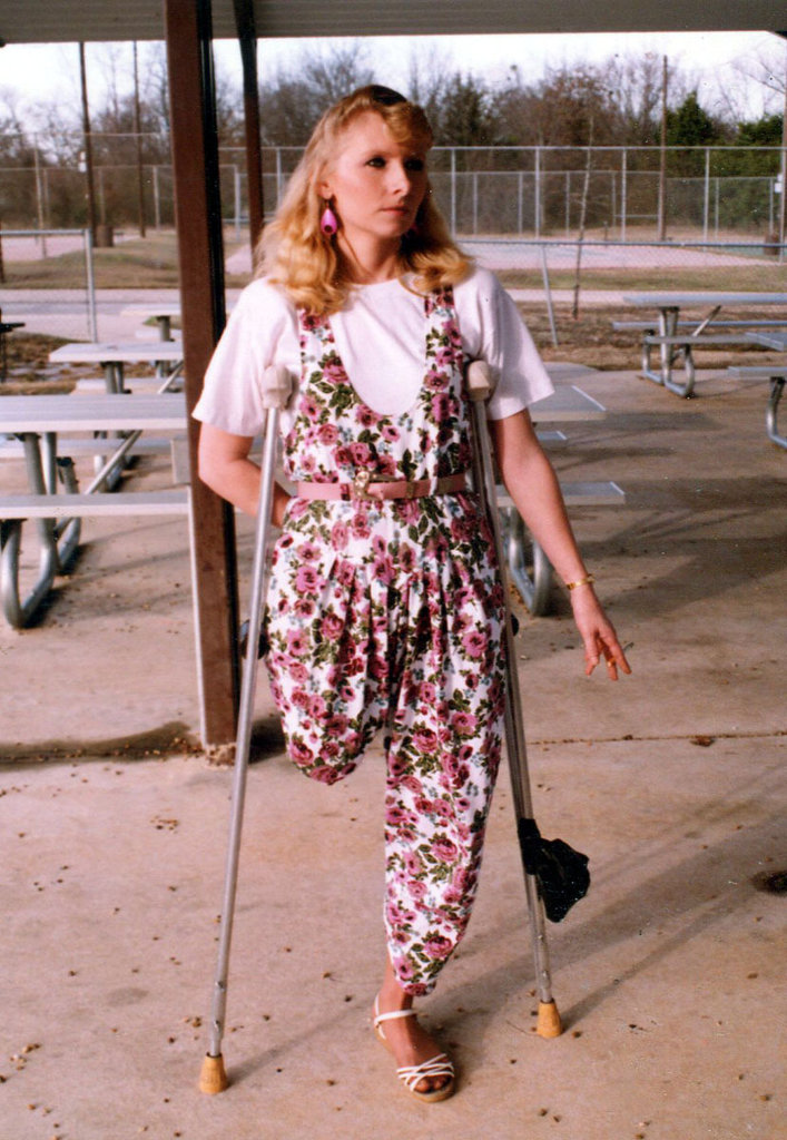 Crutching amputee ladies Meet Felicia